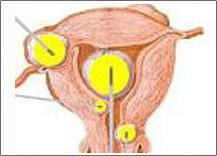 美国OKW热疗系统治疗女性尿路感染不复发