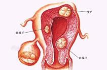 怎么判断女性患了多囊卵巢综合症?