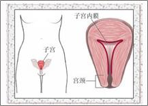 四联渗透综合疗法彻底治愈子宫内膜炎