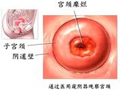 美国莎顿120宫颈修复系统 深度除糜烂不伤宫颈