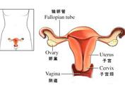 阴道异常修复 还石女做女人的权利