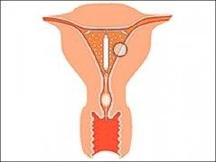 """四维渗透综合疗法治疗子宫内膜增厚""""金标准"""""""